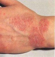 Кожные заболевания: http://www.profclinica.ru/main/onkologiya/165-kozhnye-zabolevaniya.html
