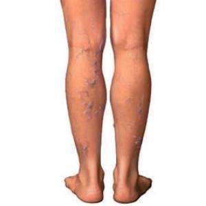Возможные последствия лечения варикоза лазером