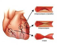 Как можно предупредить сердечно-сосудистые болезни
