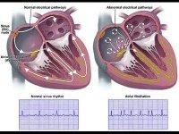 Мерцательная аритмия – «сумасшествие сердца»