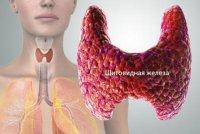 Киста щитовидной железы - коварное заболевание
