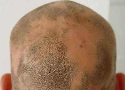 Влияние бад на выпадение волос lang ru