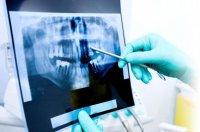 Выбор ортопантомографа по ключевым характеристикам